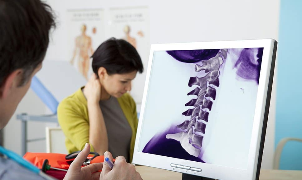 Chiropractor reading x-ray for whiplash treatment