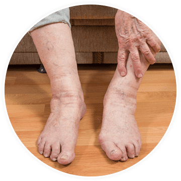 a patient's feet showing symptoms of painful diabetic peripheral neuropathy