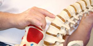 What Is a Subluxation? Causes, Symptoms & Treatment